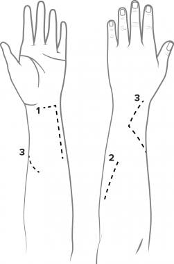 Incisions used in standard (flexor carpi ulnaris [