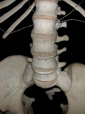 Anterior view of lumbar spine, showing lumbar vert