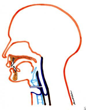 Diagram of a tracheoesophageal puncture anatomic p