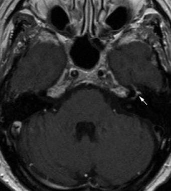 Facial neuritis. Axial contrast-enhanced T1-weight