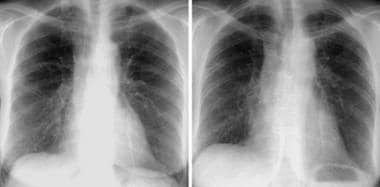 Posteroanterior chest radiograph reveals irregular