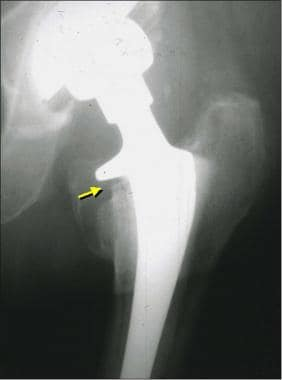 Image from an asymptomatic patient who had bone re