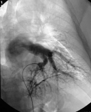 Pulmonary angiography. Venous phase angiographic i