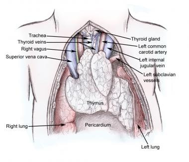 Thymus gland and surrounding structures.