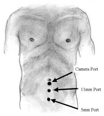 Laparoscopic inguinal hernia repair: TEP. Trocar p