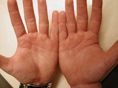 Calluses on the palmar surface of the hands of a b