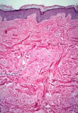 Histologic examination of a collagenoma reveals de