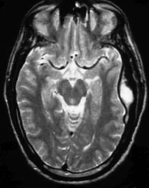 Intracranial epidural abscess. MRI of the brain, u