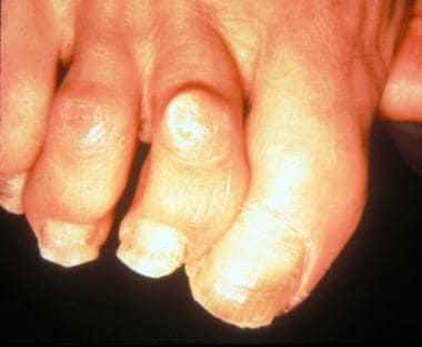 Painful dorsal callus over proximal interphalangea
