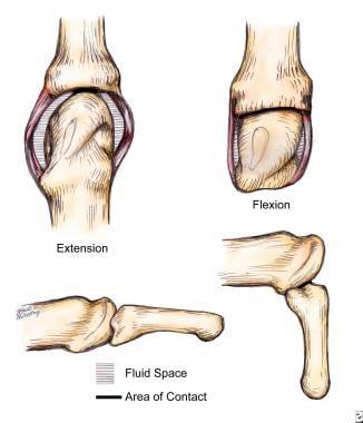 Intrinsic Plus Hand Background Anatomy Pathophysiology