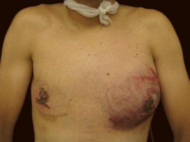 Postoperative hematoma. The most common complicati