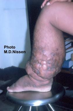 Filariasis. Inner aspect of the lower leg of the m