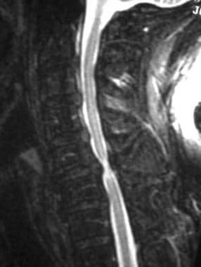 MRI of the cervical spine shows disc protrusion.