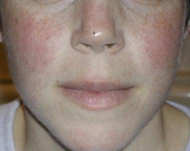 The classic malar rash, also known as a butterfly