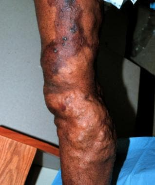 Lower extremity venous malformation.