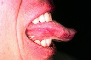 The tongue has an ulcer with an erythematous halo.