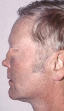 Typical short nose deformity.