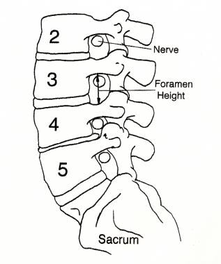 The spinal nerves exit the spinal canal through th