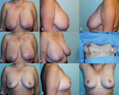 Simplified vertical breast reduction. A-E, Preoper