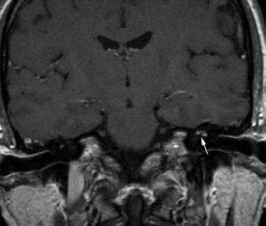 Facial neuritis. Coronal contrast-enhanced T1-weig