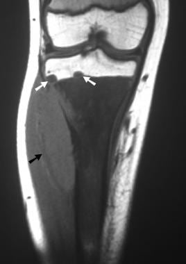 Coronal T1-weighted MRI. Note the abnormal signal