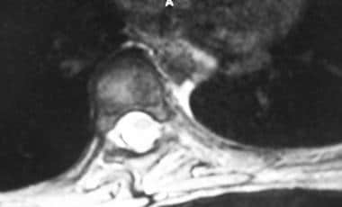 Axial MRI shows apical vertebra.