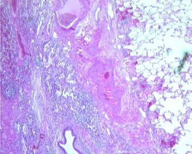 Histologic evaluation of lung abscess shows dense