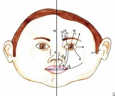 Congenital Malformations of the Nose: Overview, Embryology