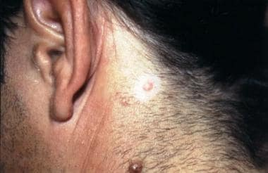 Note the central pink papule (intradermal nevus) a