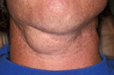 Example of a cervical ranula with no oral involvem