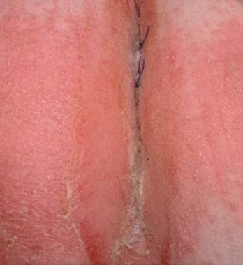 A moist, erosive, pruritic patch of the perianal s