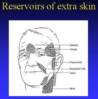 Reservoirs of extra skin.