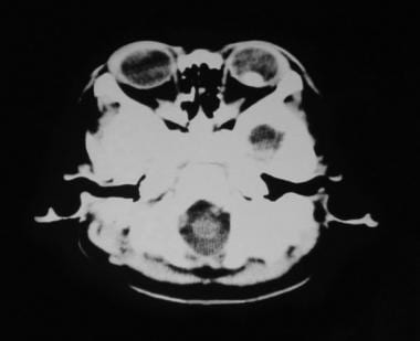Retinoblastoma, intraocular stage (CT scan finding