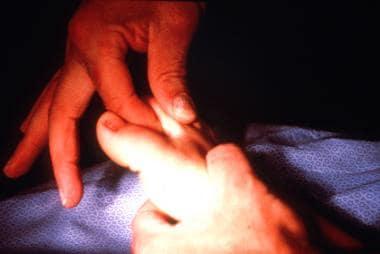 Physical examination maneuver to diagnose metatars