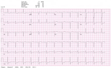 ECG in patient with first-degree heart block.