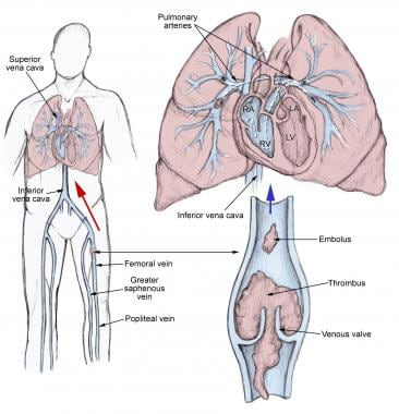 Pulmonary Embolism Practice Essentials Background Anatomy