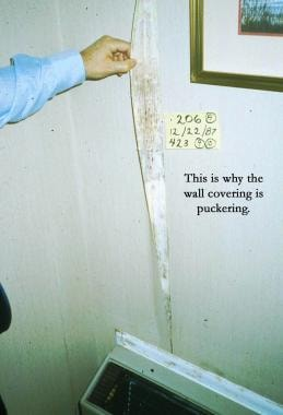 Wall coverings can pucker because of mold.