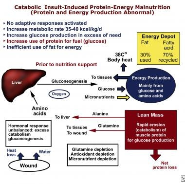 Catabolic insult–induced protein-energy malnutriti