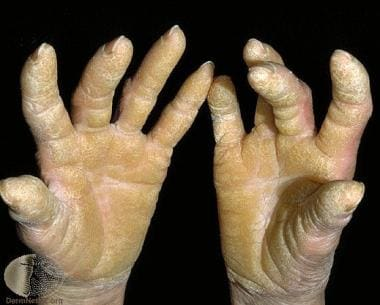 Diffuse palmoplantar keratoderma. Courtesy of Prof