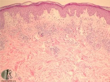 Polymorphous light eruption pathology showing papi