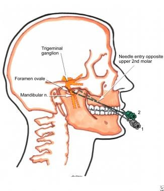 Anatomy and technique of trigeminal ganglion block
