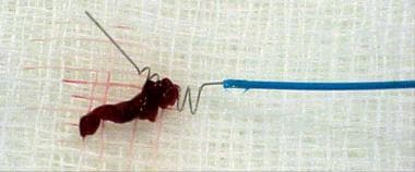 Clot retrieved from the basilar artery by using th