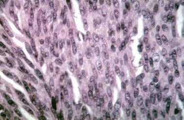Choroidal melanoma. Histologic section showing spi