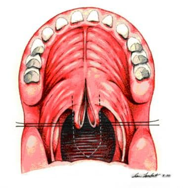 Sutures are placed bilaterally in soft palate to e