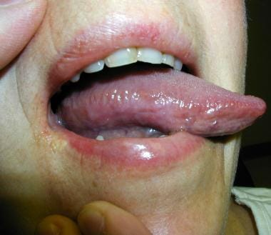 A 55-year-old female with tongue burning for 15 mo