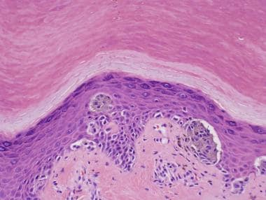 Acral compound melanocytic nevus with pagetoid mig