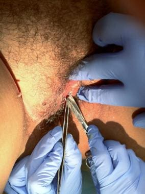 Grasping the biopsy site with toothed forceps and