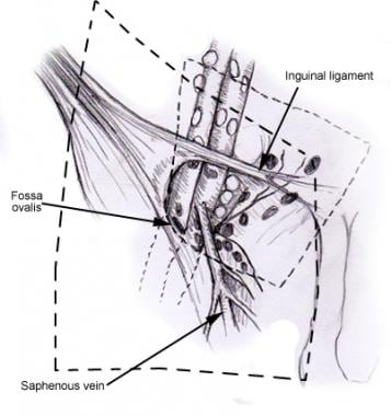 The template of inguinal lymph node dissection for