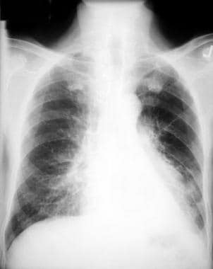 Left lower lobe collapse. This chest radiograph sh