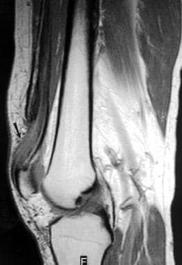 Extensor mechanism injuries of the knee. Sagittal